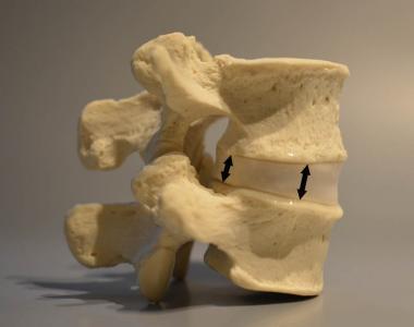 Disc Height Loss - bones